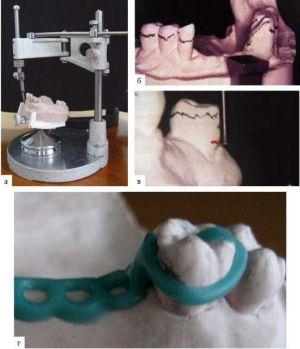 Испытание модели челюсти на параллелометре