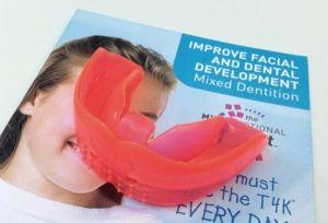 Каппа для зубов