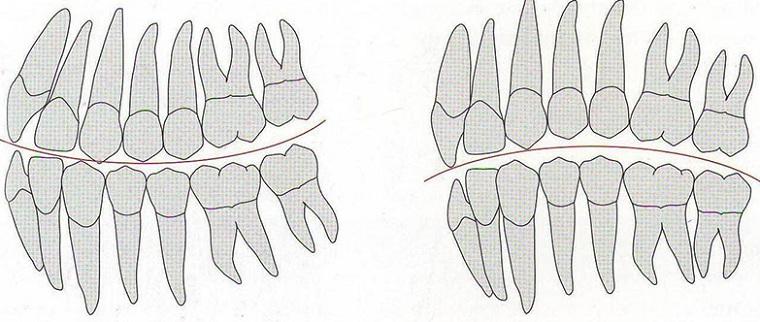 сагиттальная окклюзионная кривая