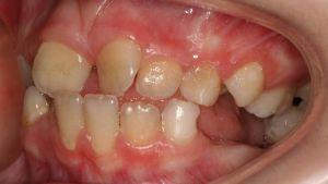 Крученные зубы