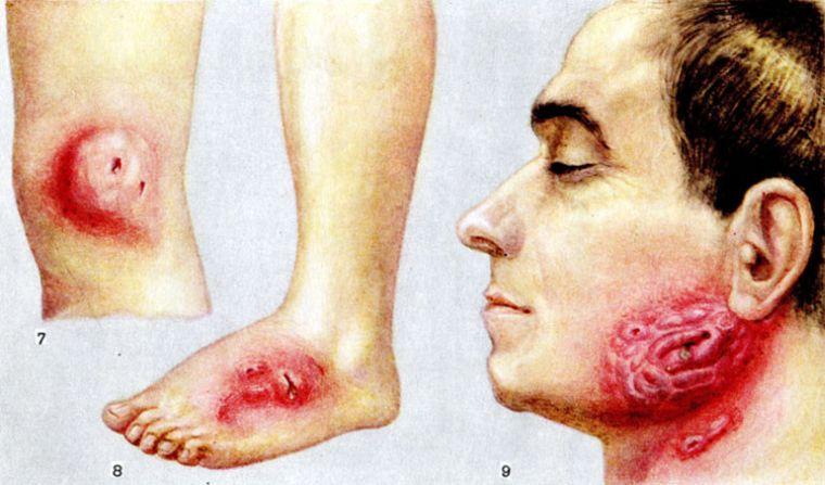 Локализации инфицирования