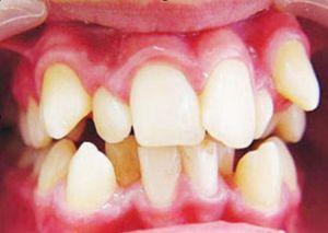 маленькие зубы