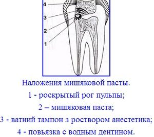 Заложение мышьяка
