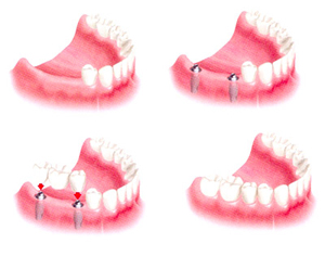Мостовидный протез на два зуба