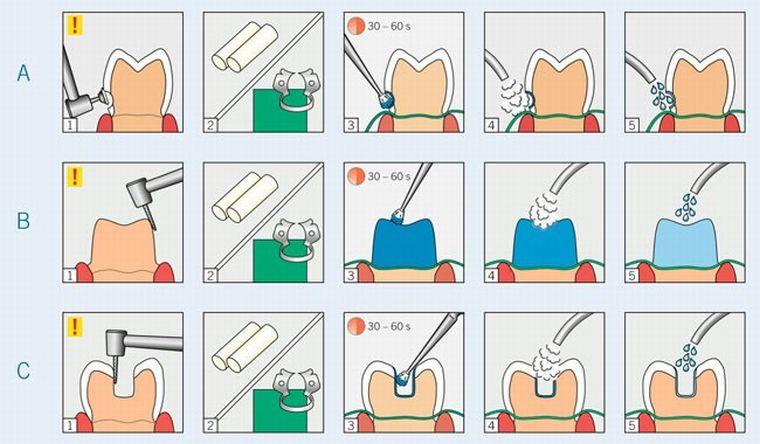 Обработка зуба десенсетайзером