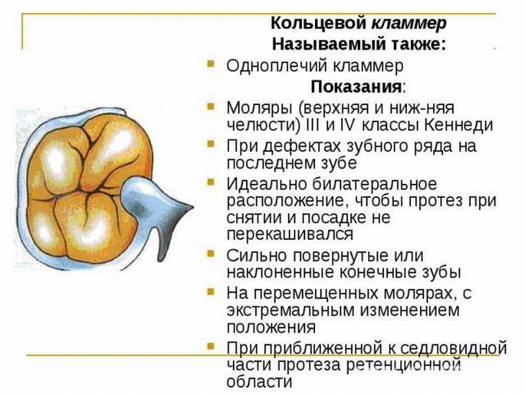 Одноплечий кламмер