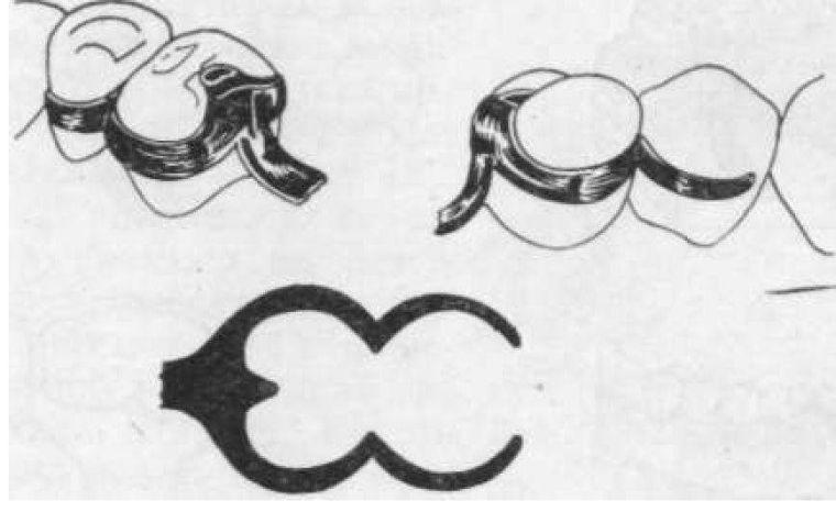 Литой опорно-удерживающий кламмер