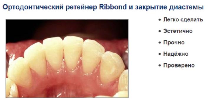 Ортодонтический ретейнер