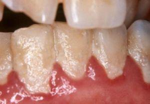 Отложения на зубах