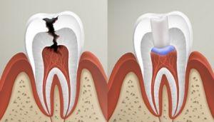 Паста в канале зуба