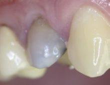 резорциненный зуб