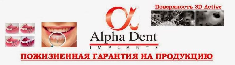 Пожизненная гарантия на импланты