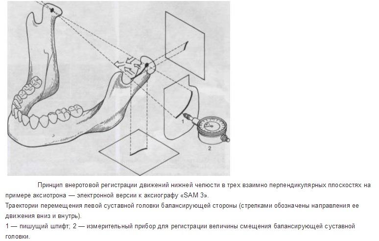 Принцип работы аксиографа