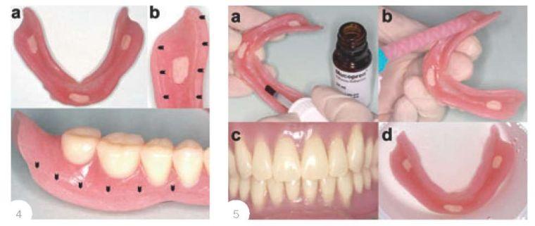 перебазировка зубных протезов в клинике
