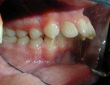 протрузия зубов