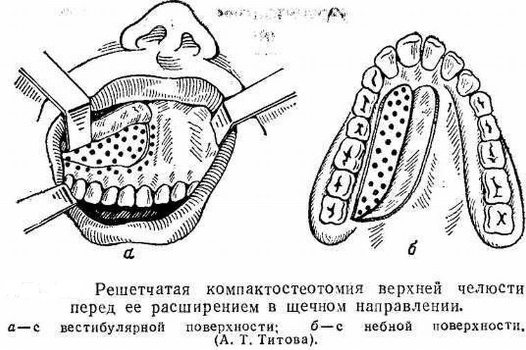 компактостеотомия вернхней челюсти
