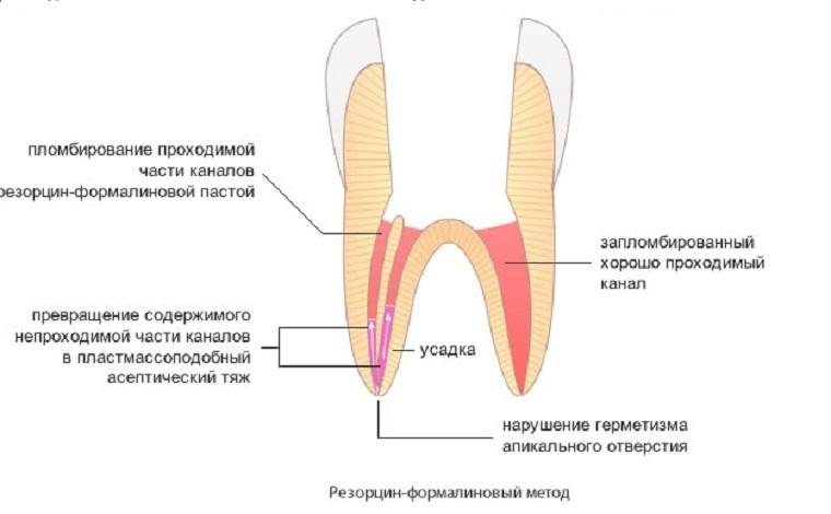 Резорцин формалиновый метод пломбирования