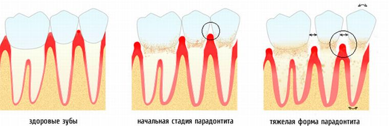 Степени подвижности зубов