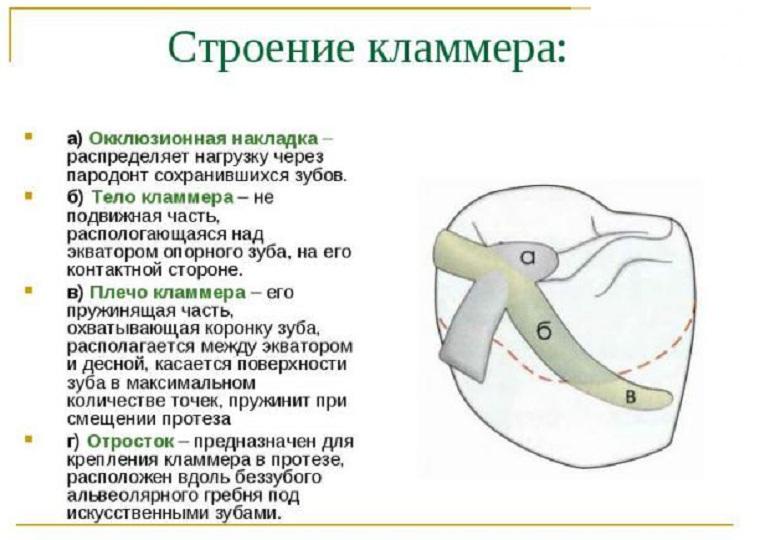 Строение кламмера