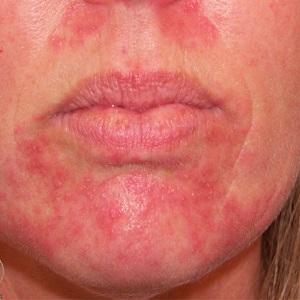аллергия на воду на лице