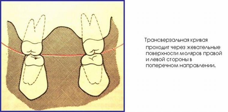 трансверзальная окклюзионная кривая