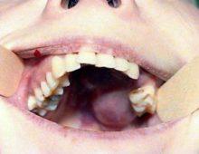 остеогенная саркома верхней челюсти