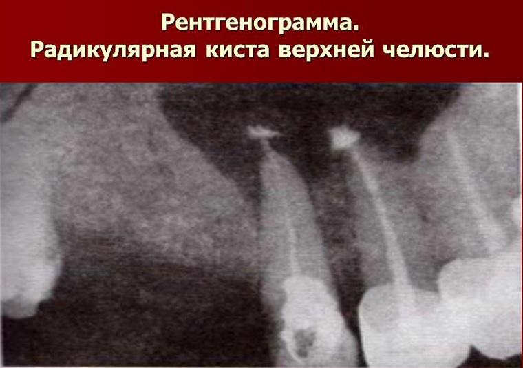 радикулярная киста на рентгене