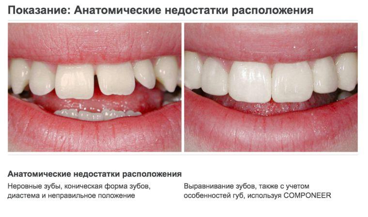 Реставрация зубов компонирами