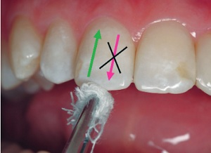 Высушивание зуба