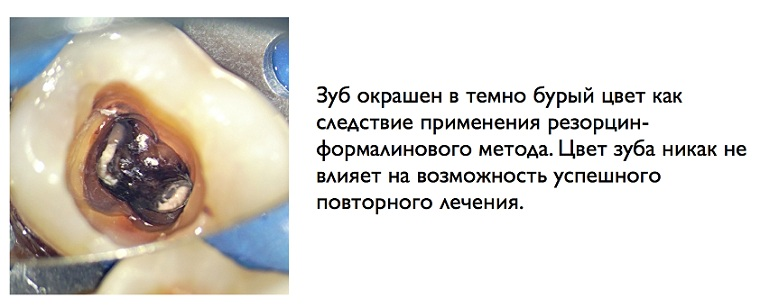 Зуб после лечения резорцином
