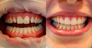Установка накладок на зубы