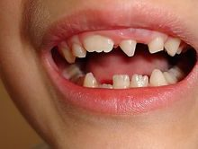 Уродливые зубы