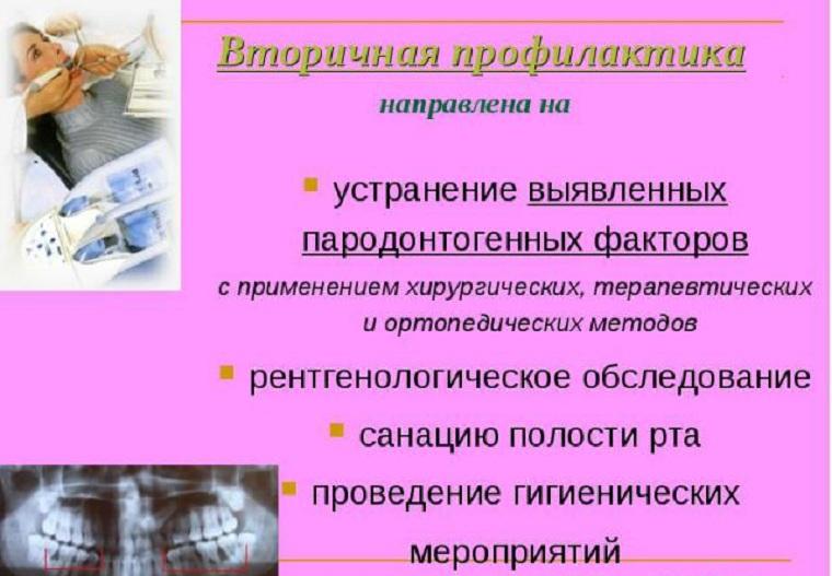 Вторичная профилактика пародонтоза
