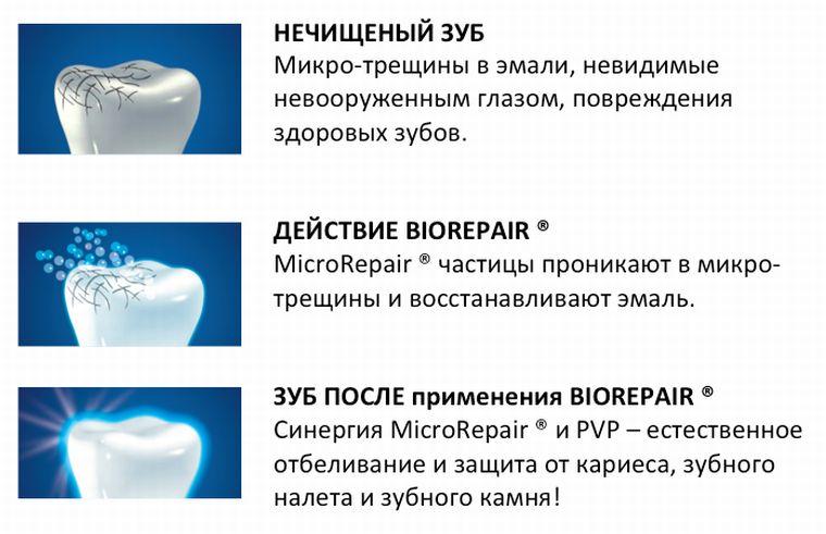 microRepair технология