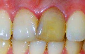 Желтый зуб