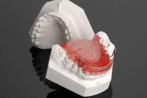 Гипсовая модель в стоматологии