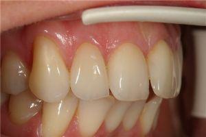 Напыление на зубы