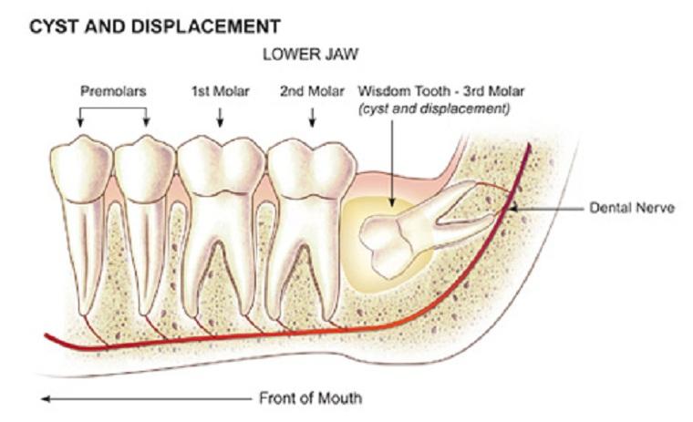 кератокиста к области зуба мудрости
