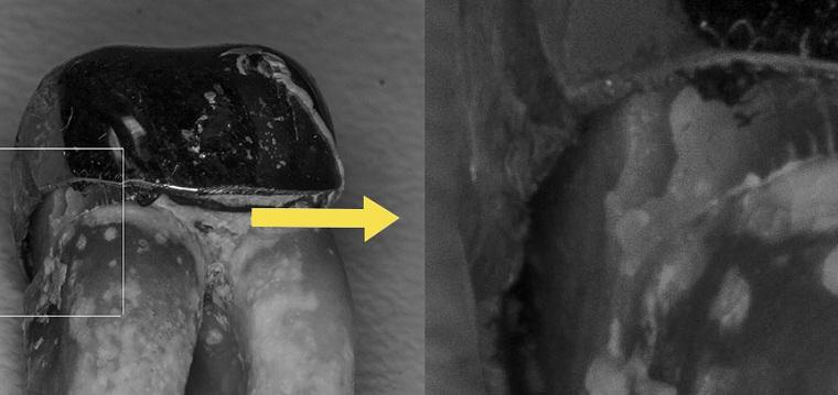 Щель между коронкой и зубом