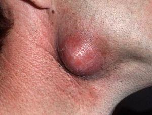 Киста на челюсти
