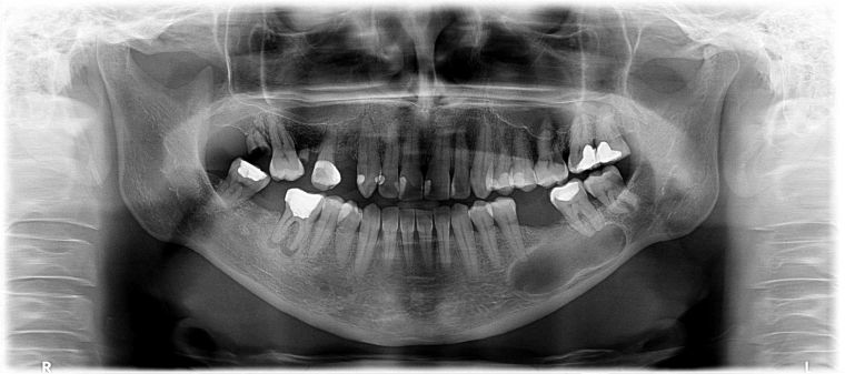 Киста на рентгене