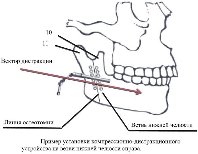 дистракционный остеогенез
