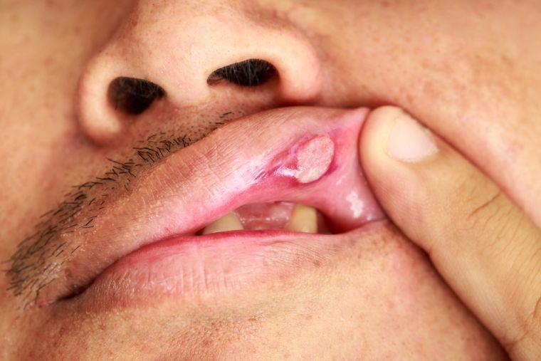 Язва на губе