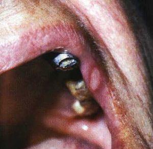 Болячки во рту