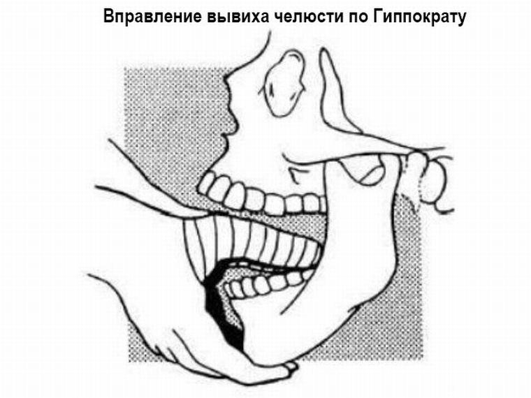Метод Гиппократа