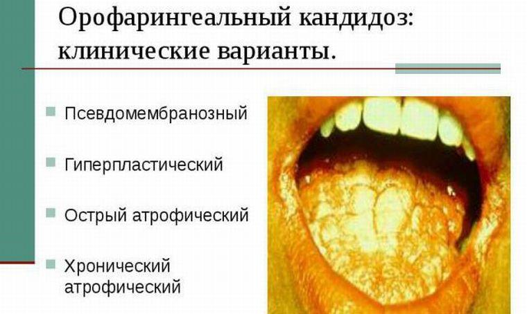 Виды молочницы во рту