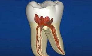 Корни зуба