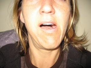 Кривая челюсть