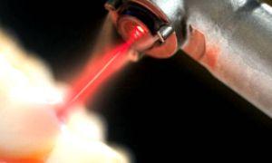 Лазер в медицине