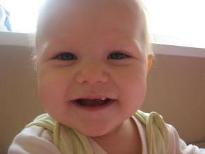 Зуб на верхней челюсти